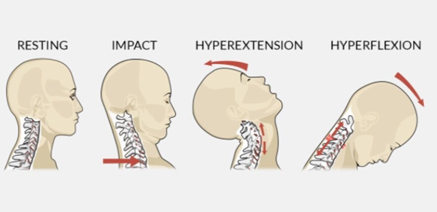Physical Therapy for Whiplash Treatment